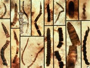 Fossilized Bacteria